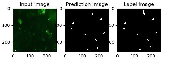 Image Analysis for TB Diagnosis