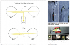 arclight-diagram-device-and-mobile-phone-attachment